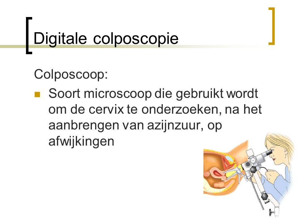 Colposcoop:  Soort microscoop die gebruikt wordt om de cervix te onderzoeken, na het aanbrengen van azijnzuur, op afwijkingen