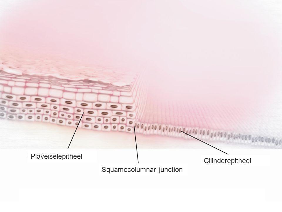 Plaveiselepitheel Squamocolumnar junction Cilinderepitheel