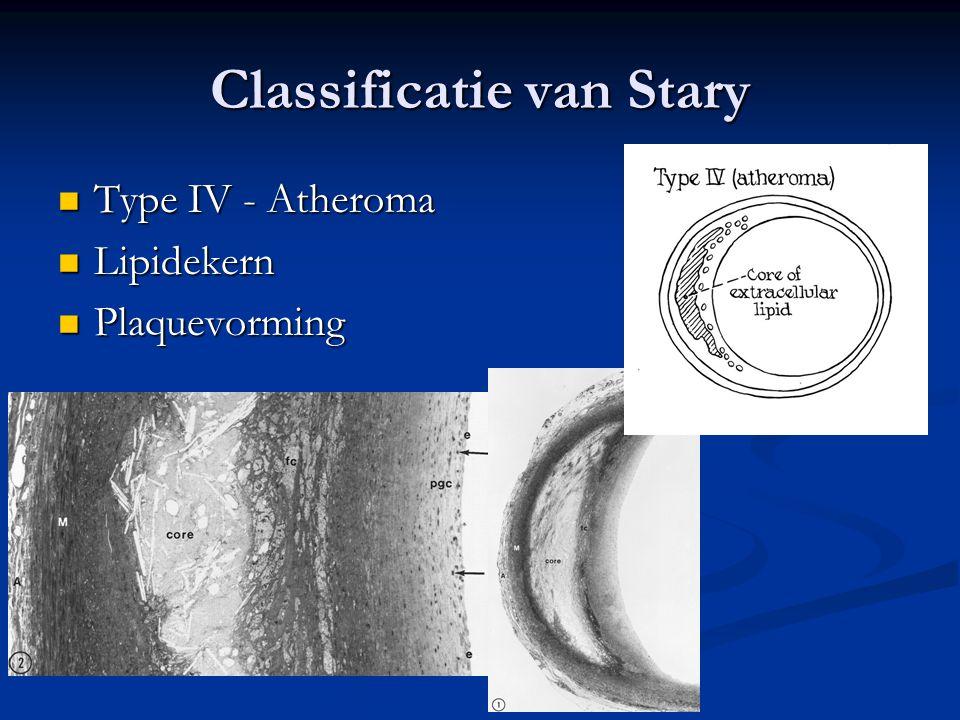  Type IV - Atheroma  Lipidekern  Plaquevorming