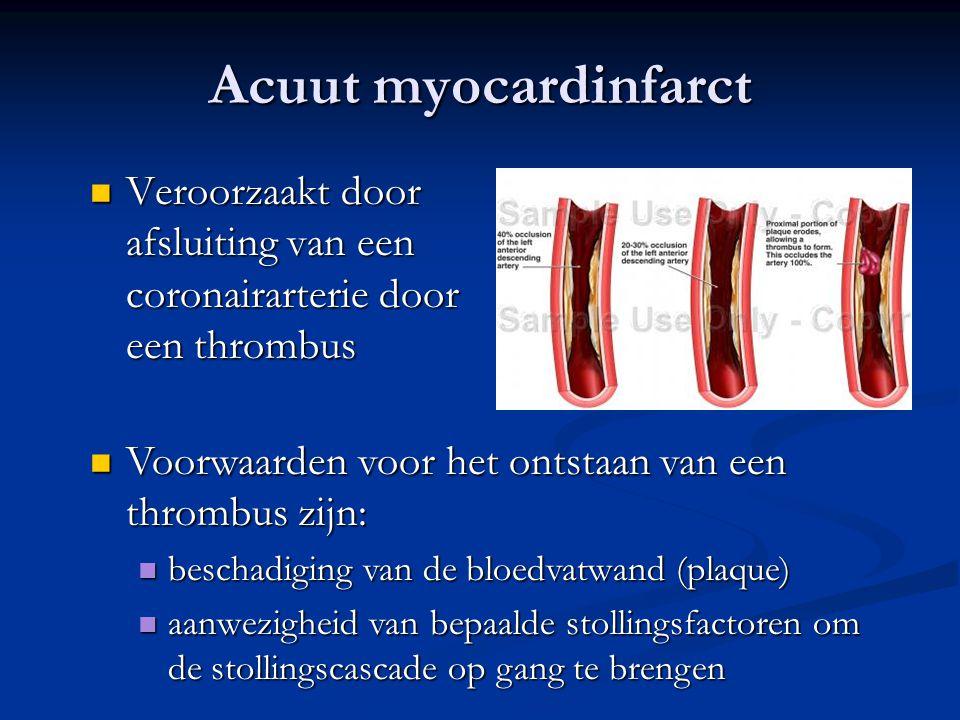 Acuut myocardinfarct  Veroorzaakt door afsluiting van een coronairarterie door een thrombus  Voorwaarden voor het ontstaan van een thrombus zijn:  beschadiging van de bloedvatwand (plaque)  aanwezigheid van bepaalde stollingsfactoren om de stollingscascade op gang te brengen