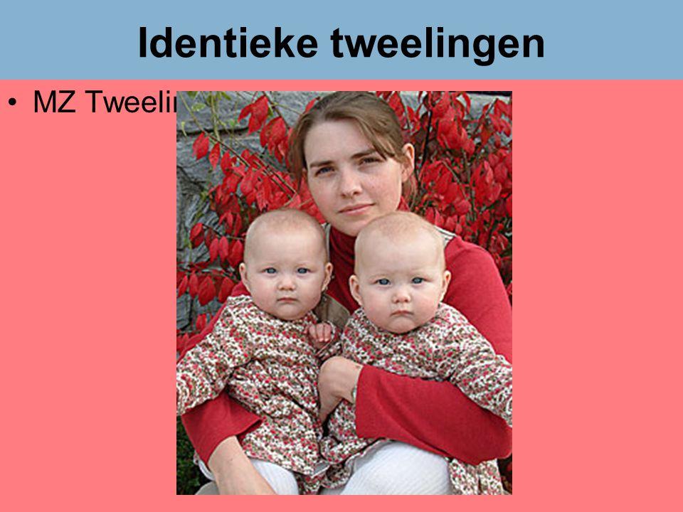 Dr Peet H Botha36 Identieke tweelingen •MZ Tweelingen
