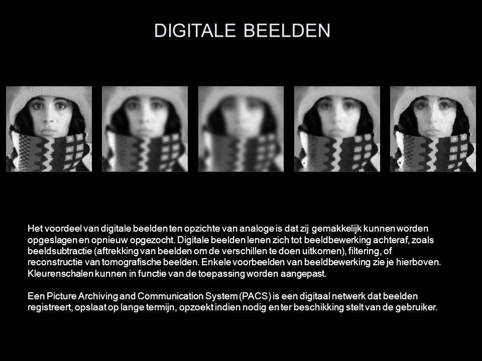 Het voordeel van digitale beelden ten opzichte van analoge is dat zij gemakkelijk kunnen worden opgeslagen en opnieuw opgezocht. Digitale beelden lene