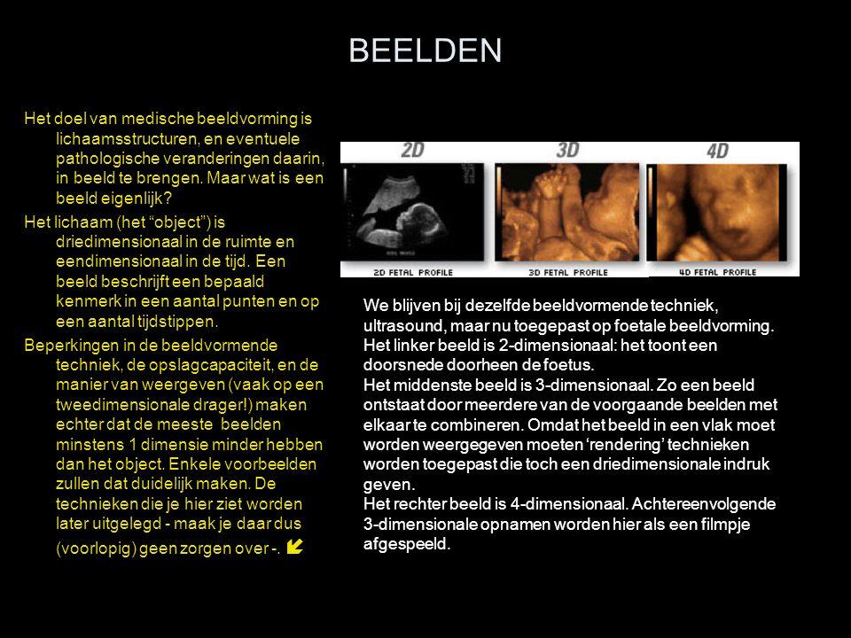 BEELDEN Het doel van medische beeldvorming is lichaamsstructuren, en eventuele pathologische veranderingen daarin, in beeld te brengen. Maar wat is ee