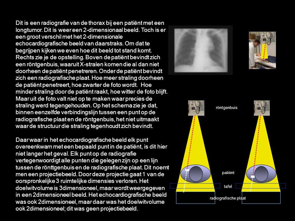 Dit is een radiografie van de thorax bij een patiënt met een longtumor. Dit is weer een 2-dimensionaal beeld. Toch is er een groot verschil met het 2-