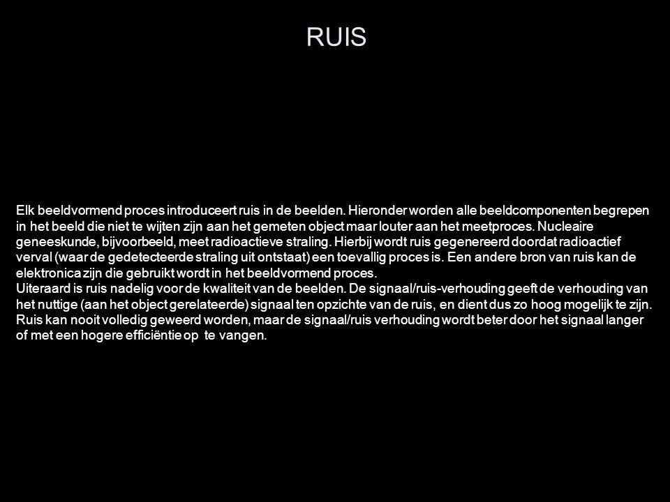 RUIS Elk beeldvormend proces introduceert ruis in de beelden. Hieronder worden alle beeldcomponenten begrepen in het beeld die niet te wijten zijn aan