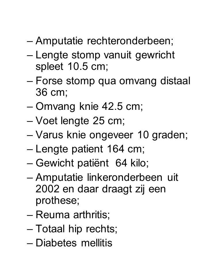 –Amputatie rechteronderbeen; –Lengte stomp vanuit gewricht spleet 10.5 cm; –Forse stomp qua omvang distaal 36 cm; –Omvang knie 42.5 cm; –Voet lengte 25 cm; –Varus knie ongeveer 10 graden; –Lengte patient 164 cm; –Gewicht patiënt 64 kilo; –Amputatie linkeronderbeen uit 2002 en daar draagt zij een prothese; –Reuma arthritis; –Totaal hip rechts; –Diabetes mellitis