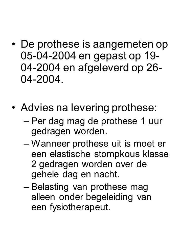 •De prothese is aangemeten op 05-04-2004 en gepast op 19- 04-2004 en afgeleverd op 26- 04-2004. •Advies na levering prothese: –Per dag mag de prothese