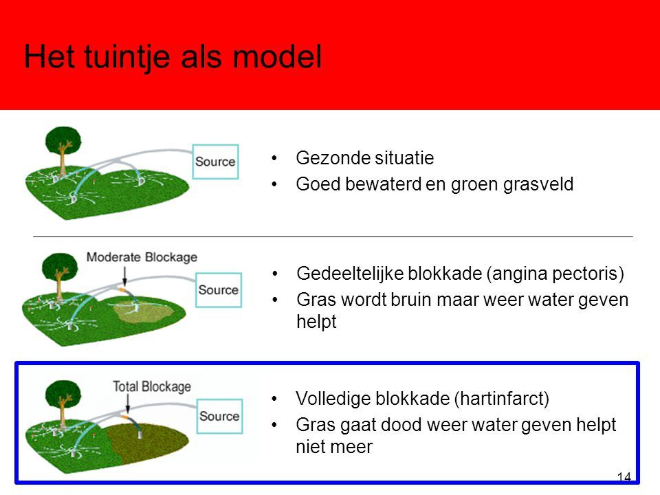 Het tuintje als model •Gezonde situatie •Goed bewaterd en groen grasveld •Gedeeltelijke blokkade (angina pectoris) •Gras wordt bruin maar weer water g