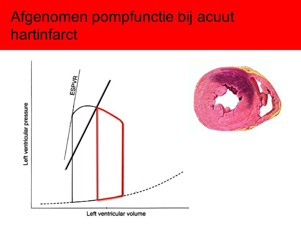 Afgenomen pompfunctie bij acuut hartinfarct
