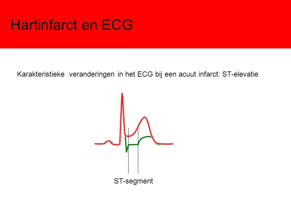 Hartinfarct en ECG Karakteristieke veranderingen in het ECG bij een acuut infarct: ST-elevatie ST-segment
