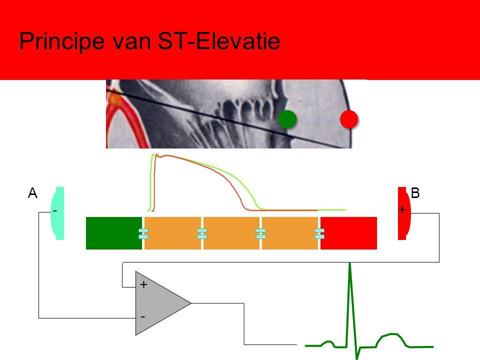 Principe van ST-Elevatie -+ - + AB
