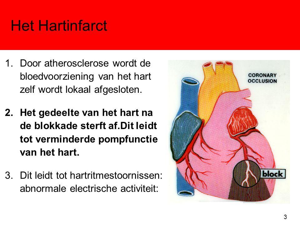 Het Hartinfarct 1.Door atherosclerose wordt de bloedvoorziening van het hart zelf wordt lokaal afgesloten. 2.Het gedeelte van het hart na de blokkade