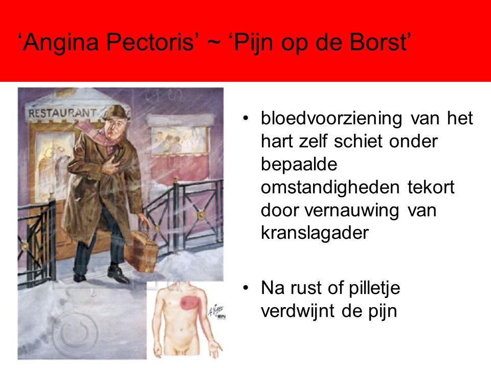 'Angina Pectoris' ~ 'Pijn op de Borst' •bloedvoorziening van het hart zelf schiet onder bepaalde omstandigheden tekort door vernauwing van kranslagade
