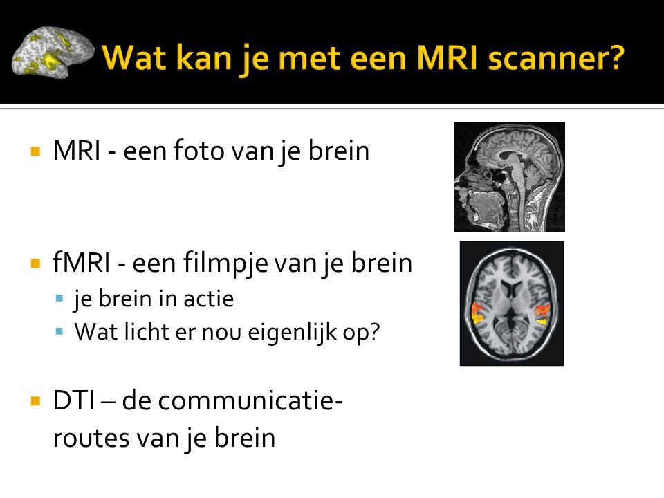 MRI - een foto van je brein  fMRI - een filmpje van je brein  je brein in actie  Wat licht er nou eigenlijk op?  DTI – de communicatie- routes v