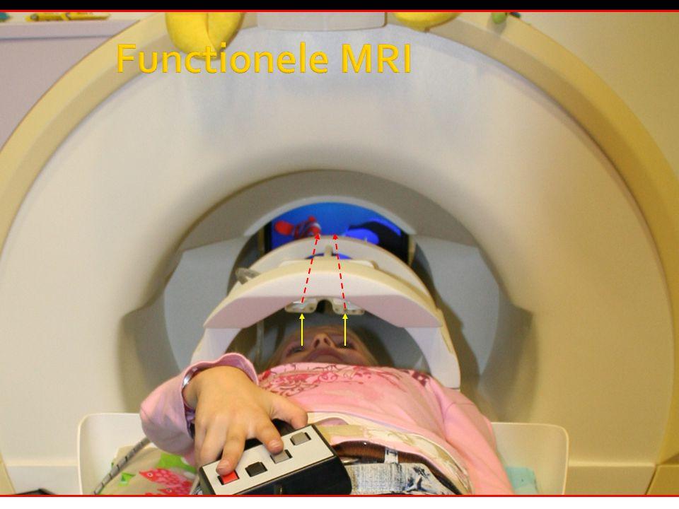  fMRI: proefpersoon voert taak uit