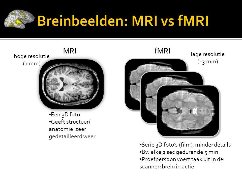 MRIfMRI • Eén 3D foto • Geeft structuur/ anatomie zeer gedetailleerd weer • Serie 3D foto's (film), minder details • Bv: elke 2 sec gedurende 5 min.