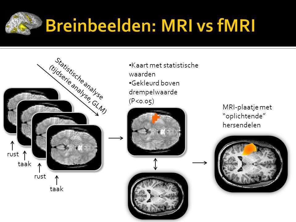 """… • Kaart met statistische waarden • Gekleurd boven drempelwaarde (P<0.05) MRI-plaatje met """"oplichtende"""" hersendelen rust taak"""
