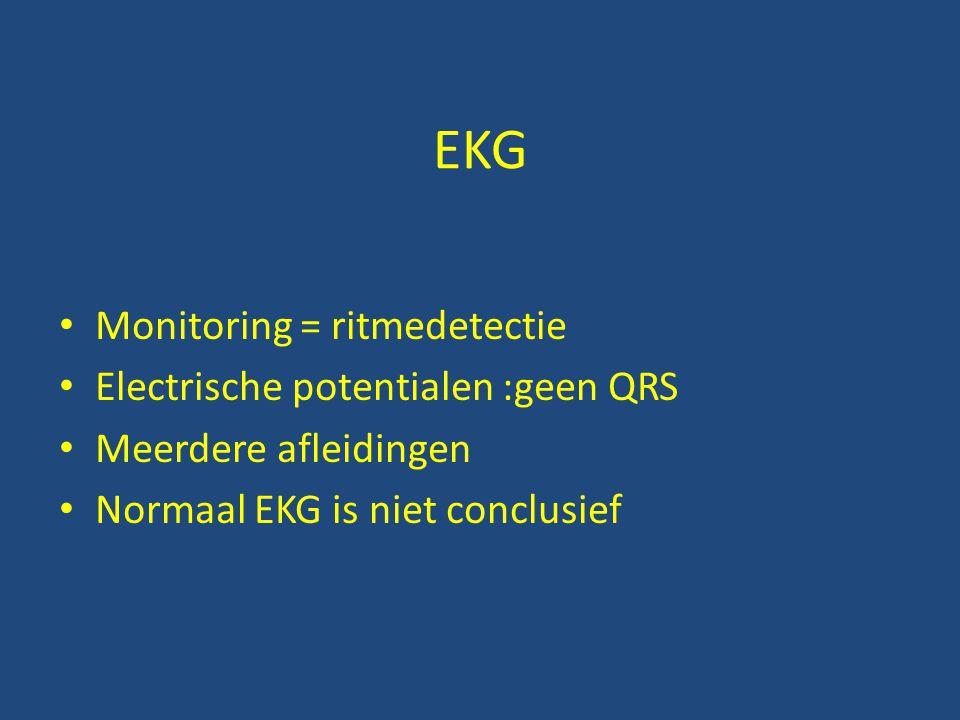 EKG • Monitoring = ritmedetectie • Electrische potentialen :geen QRS • Meerdere afleidingen • Normaal EKG is niet conclusief