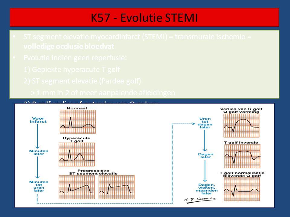 K57 - Evolutie STEMI • ST segment elevatie myocardinfarct (STEMI) = transmurale ischemie = volledige occlusie bloedvat • Evolutie indien geen reperfusie: 1) Gepiekte hyperacute T golf 2) ST segment elevatie (Pardee golf) > 1 mm in 2 of meer aanpalende afleidingen 3) R golf verlies of optreden van Q golven 4) T golf inversie