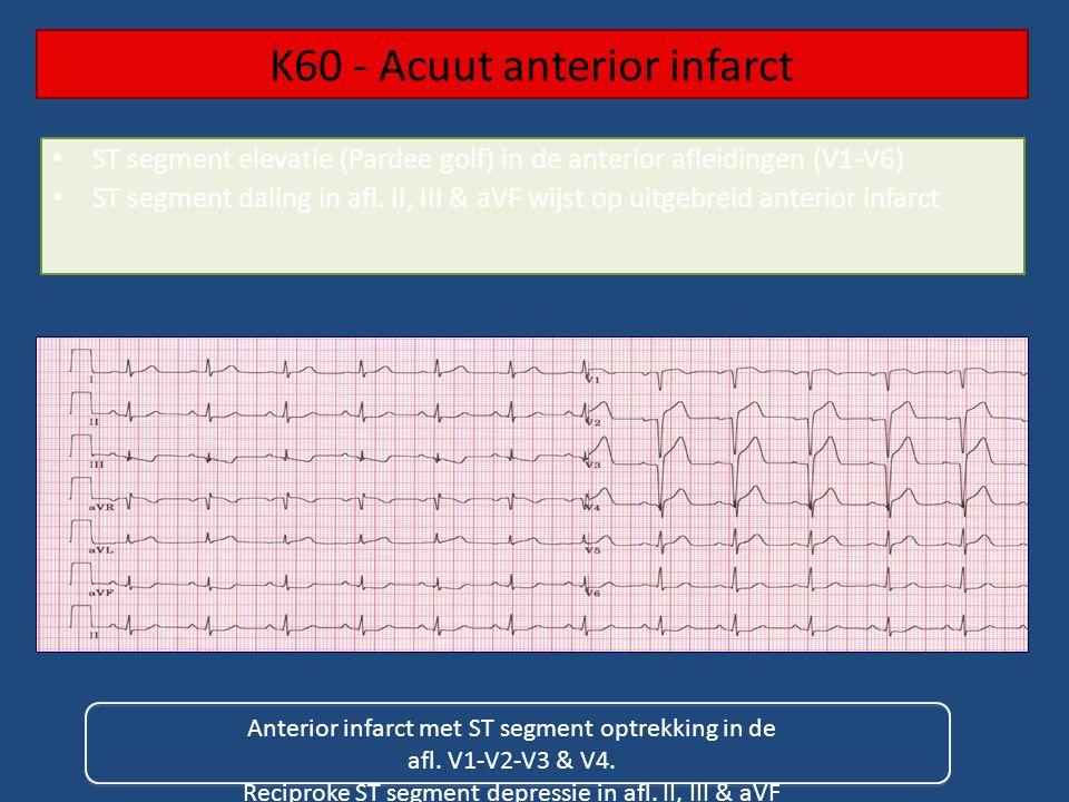 K60 - Acuut anterior infarct Anterior infarct met ST segment optrekking in de afl.