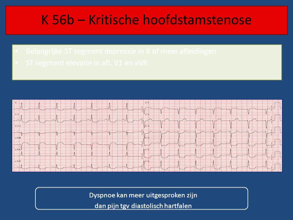K 56b – Kritische hoofdstamstenose • Belangrijke ST segment depressie in 8 of meer afleidingen • ST segment elevatie in afl.