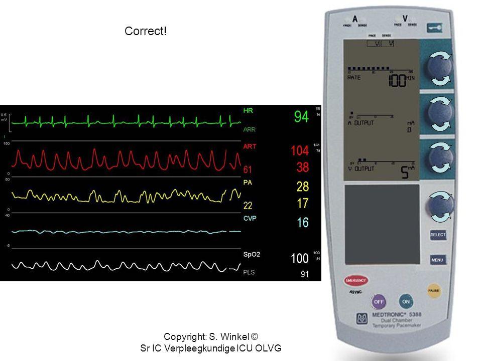Copyright: S. Winkel © Sr IC Verpleegkundige ICU OLVG Beoordeel onderliggend ritme