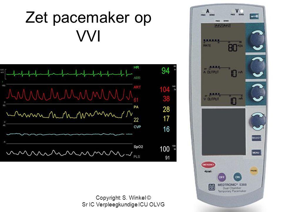 Copyright: S. Winkel © Sr IC Verpleegkundige ICU OLVG Laat pacemaker weer synchroom pacen