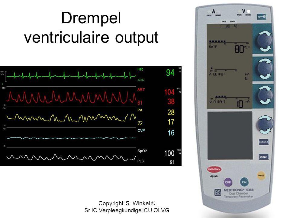 Copyright: S. Winkel © Sr IC Verpleegkundige ICU OLVG Drempel ventriculaire output