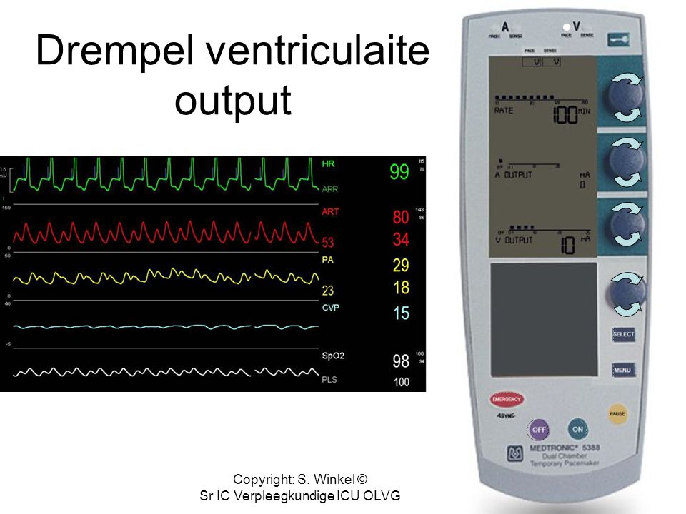 Copyright: S. Winkel © Sr IC Verpleegkundige ICU OLVG Draai vent output terug