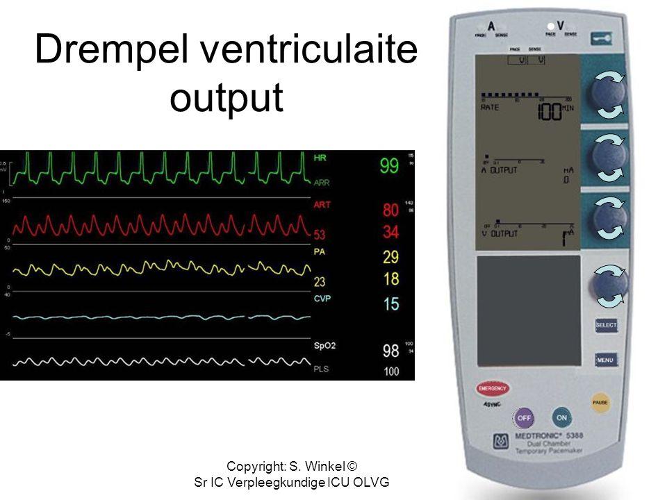 Copyright: S. Winkel © Sr IC Verpleegkundige ICU OLVG Drempel ventriculair