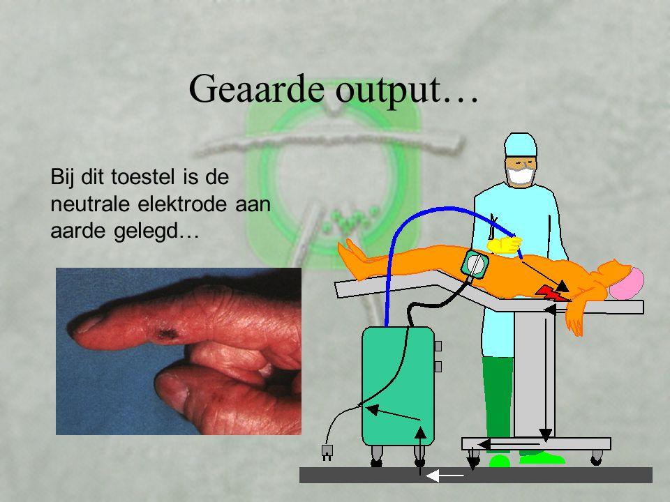 De neutraal elektrode V •Maar 1 keer plakken! •Gebruik bij twee patiënten is niet alleen onhygiënisch, maar ook gevaarlijk! •Bij ondeskundig aanbrenge