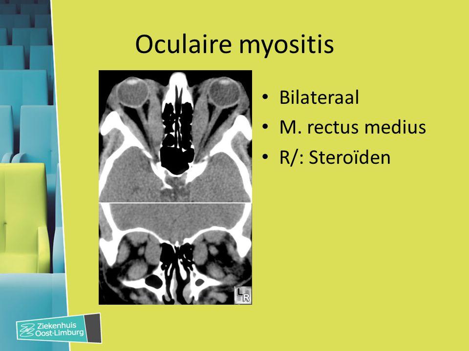 Oculaire myositis Bilateraal M. rectus medius R/: Steroïden