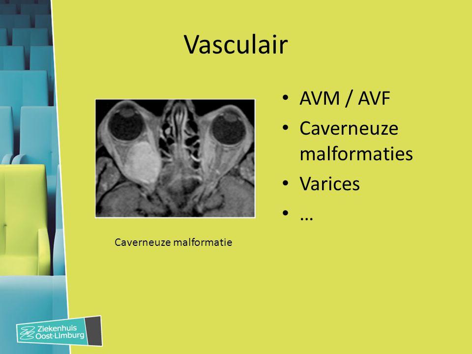 Vasculair AVM / AVF Caverneuze malformaties Varices … Caverneuze malformatie
