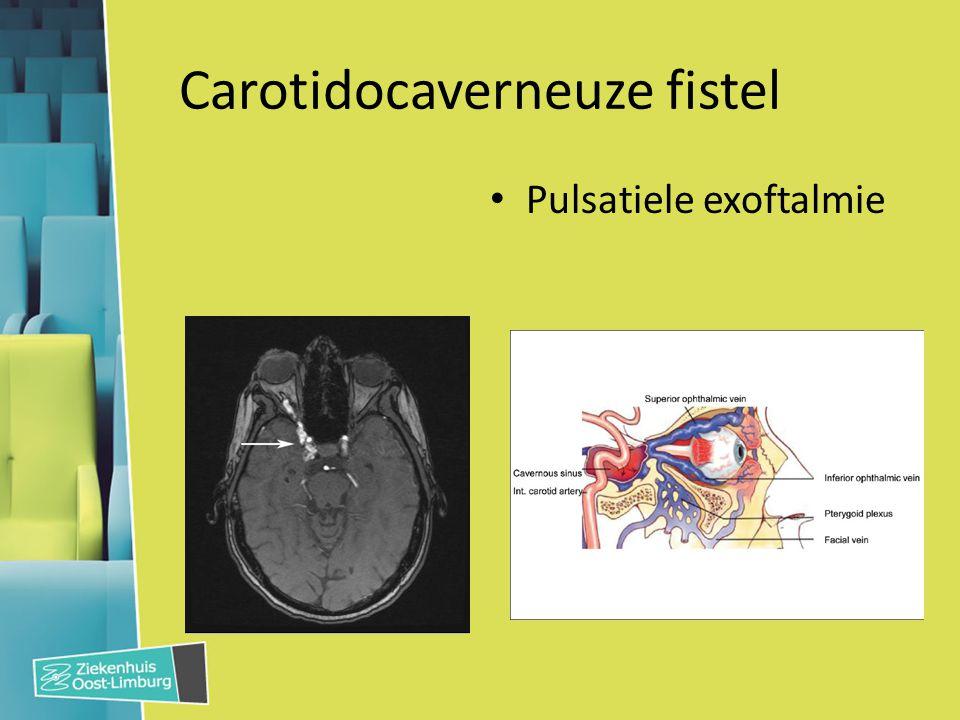 Carotidocaverneuze fistel Pulsatiele exoftalmie