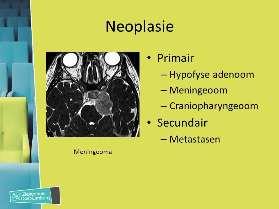 Neoplasie Primair – Hypofyse adenoom – Meningeoom – Craniopharyngeoom Secundair – Metastasen Meningeoma