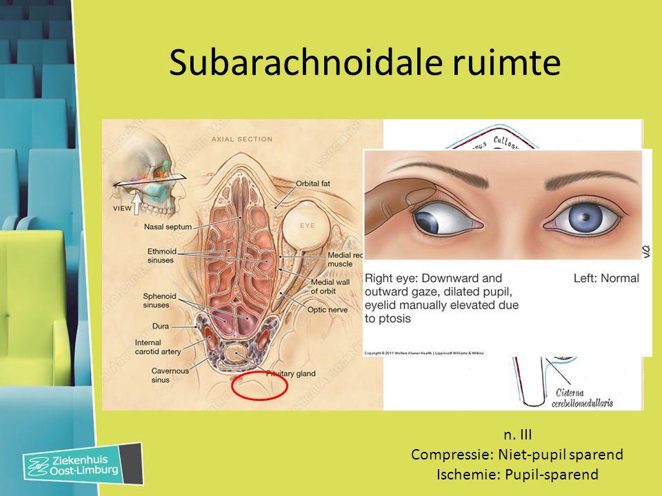 Subarachnoidale ruimte n. III Compressie: Niet-pupil sparend Ischemie: Pupil-sparend