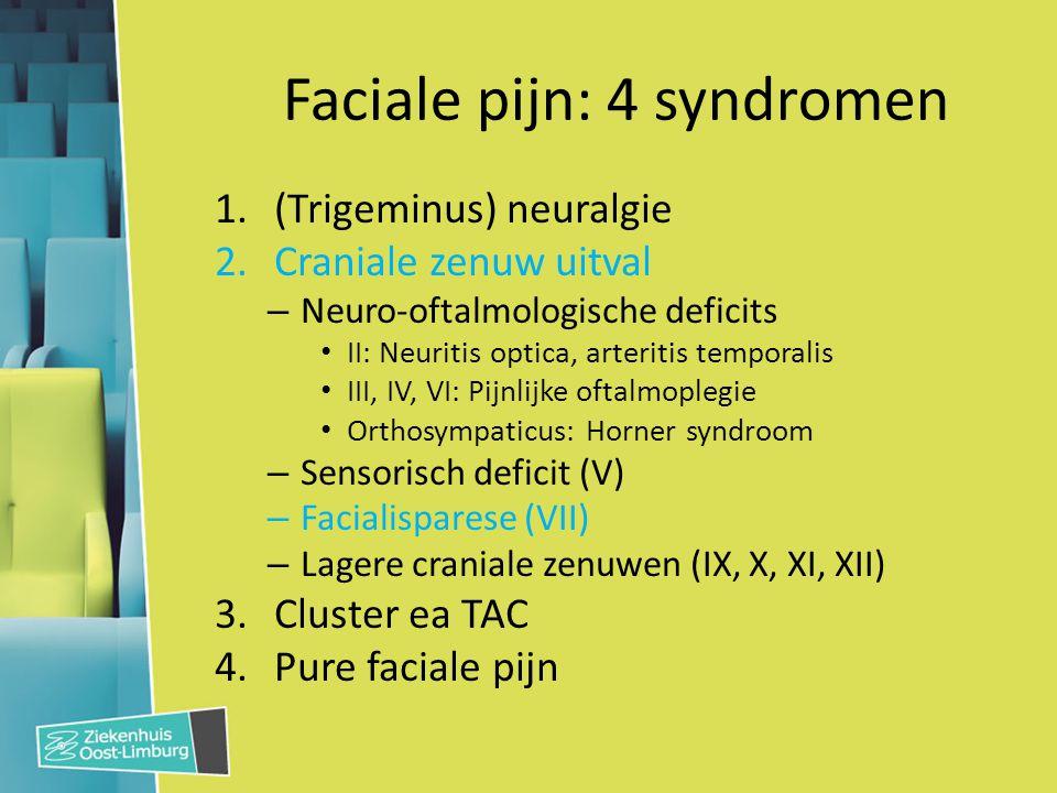 Faciale pijn: 4 syndromen 1.(Trigeminus) neuralgie 2.Craniale zenuw uitval – Neuro-oftalmologische deficits II: Neuritis optica, arteritis temporalis