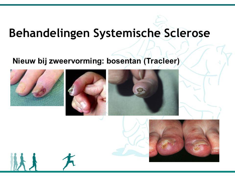 Behandelingen Systemische Sclerose Nieuw bij zweervorming: bosentan (Tracleer)