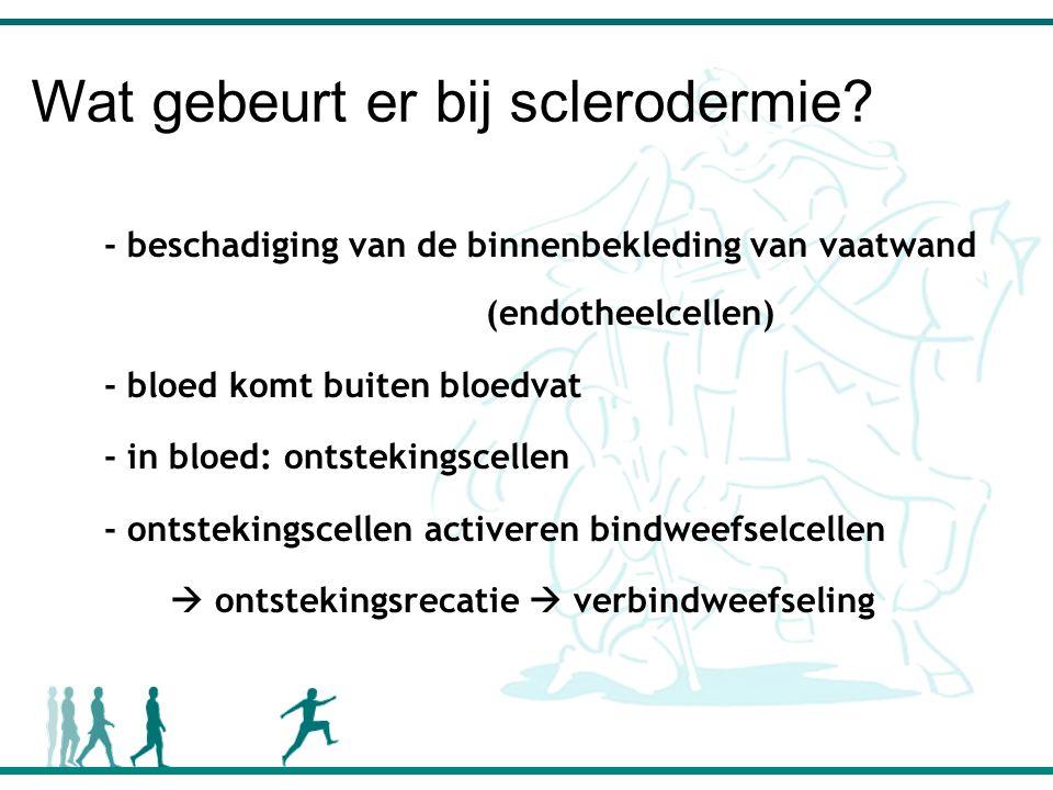 Wat gebeurt er bij sclerodermie.