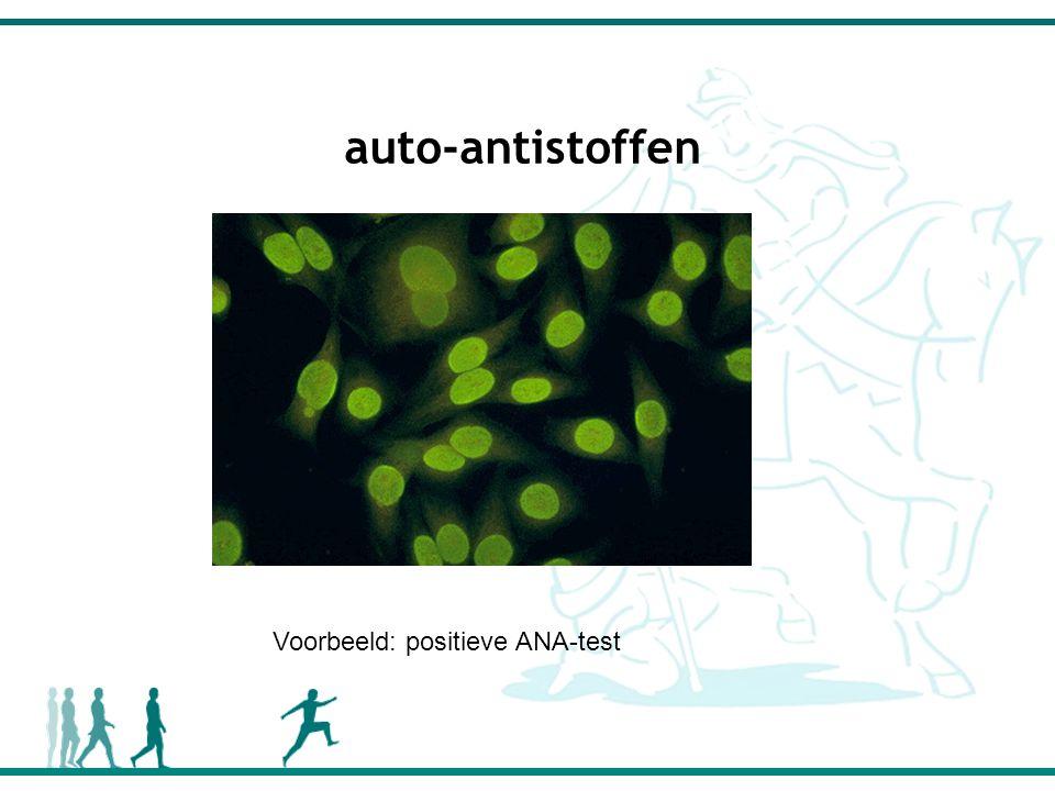 auto-antistoffen Voorbeeld: positieve ANA-test
