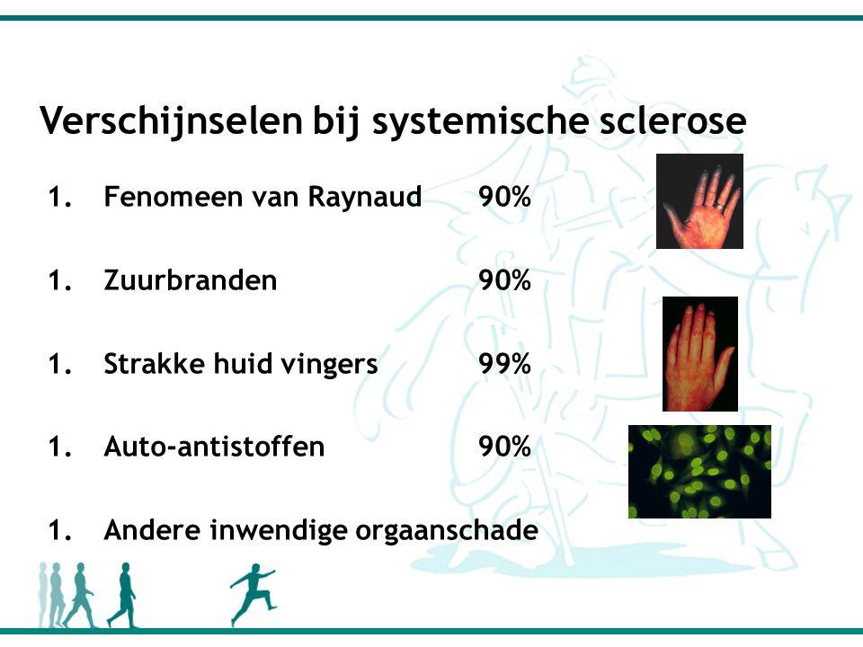 Verschijnselen bij systemische sclerose 1.Fenomeen van Raynaud90% 1.Zuurbranden90% 1.Strakke huid vingers99% 1.Auto-antistoffen90% 1.Andere inwendige orgaanschade