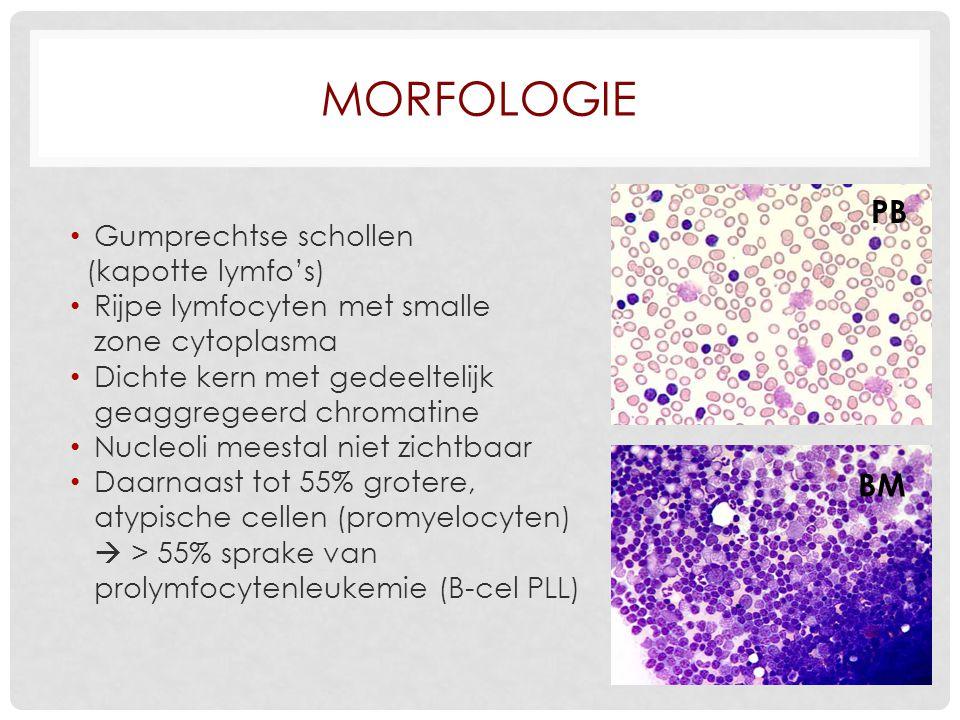 MORFOLOGIE Gumprechtse schollen (kapotte lymfo's) Rijpe lymfocyten met smalle zone cytoplasma Dichte kern met gedeeltelijk geaggregeerd chromatine Nucleoli meestal niet zichtbaar Daarnaast tot 55% grotere, atypische cellen (promyelocyten)  > 55% sprake van prolymfocytenleukemie (B-cel PLL) PB BM