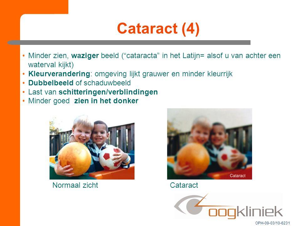 """Cataract (4) Normaal zichtCataract Minder zien, waziger beeld (""""cataracta"""" in het Latijn= alsof u van achter een waterval kijkt) Kleurverandering: omg"""