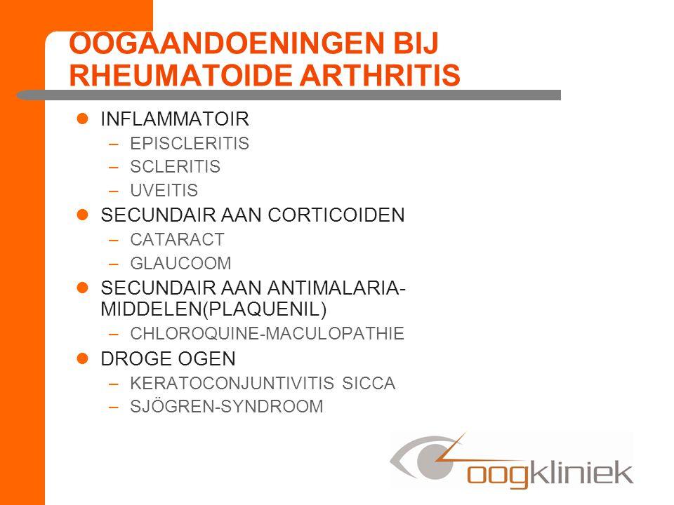 INFLAMMATOIR –EPISCLERITIS –SCLERITIS –UVEITIS SECUNDAIR AAN CORTICOIDEN –CATARACT –GLAUCOOM SECUNDAIR AAN ANTIMALARIA- MIDDELEN(PLAQUENIL) –CHLOROQUINE-MACULOPATHIE DROGE OGEN –KERATOCONJUNTIVITIS SICCA –SJÖGREN-SYNDROOM