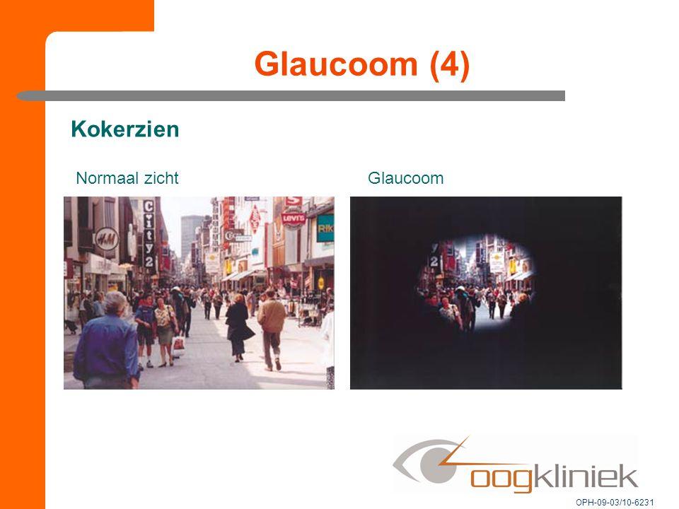 Glaucoom (4) Normaal zichtGlaucoom Kokerzien OPH-09-03/10-6231