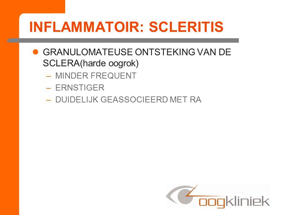 INFLAMMATOIR: SCLERITIS GRANULOMATEUSE ONTSTEKING VAN DE SCLERA(harde oogrok) –MINDER FREQUENT –ERNSTIGER –DUIDELIJK GEASSOCIEERD MET RA