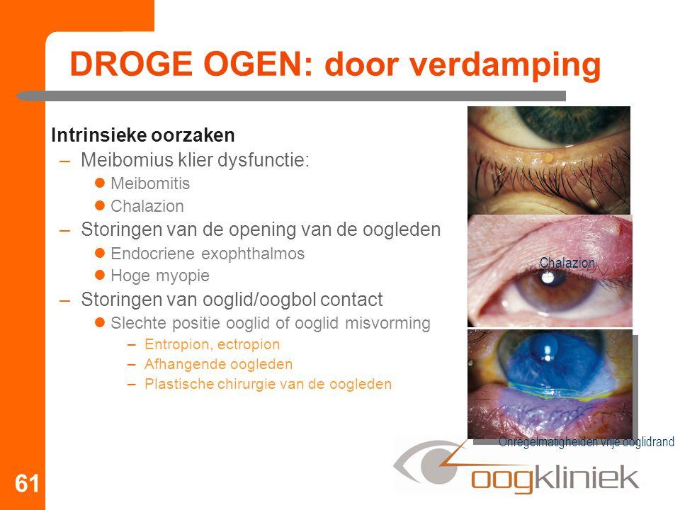 DROGE OGEN: door verdamping Intrinsieke oorzaken –Meibomius klier dysfunctie: Meibomitis Chalazion –Storingen van de opening van de oogleden Endocrien