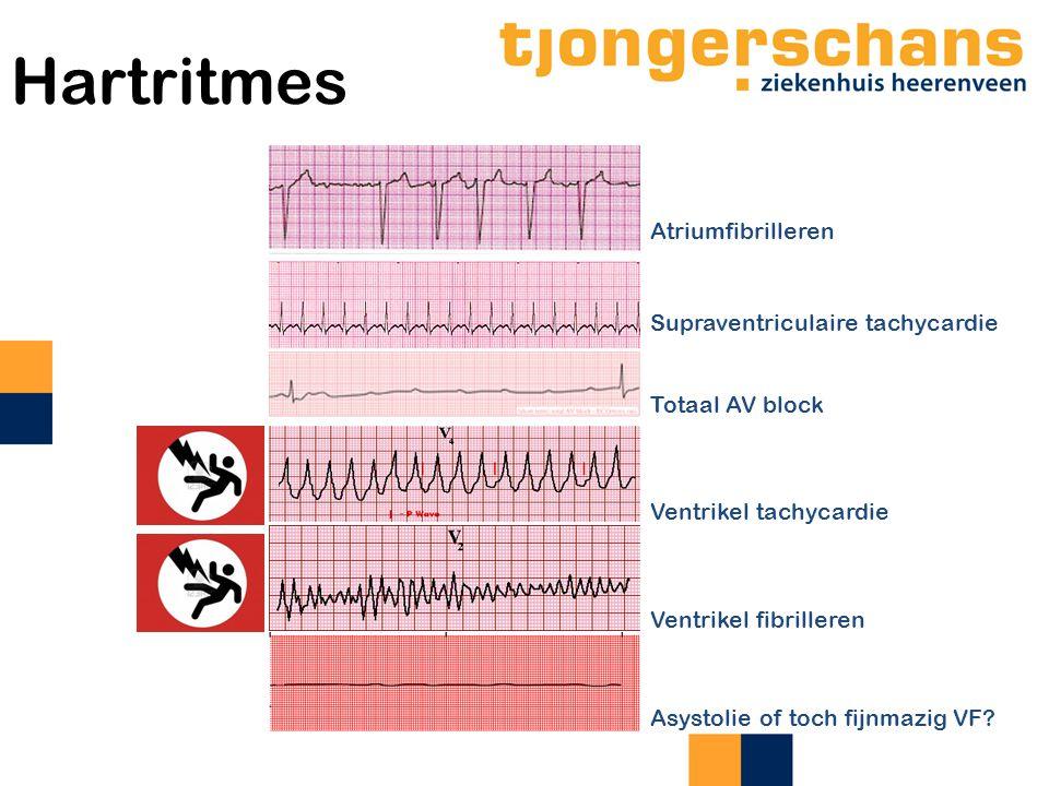 Hartritmes Totaal AV block Supraventriculaire tachycardie Ventrikel tachycardie Ventrikel fibrilleren Atriumfibrilleren Asystolie of toch fijnmazig VF?