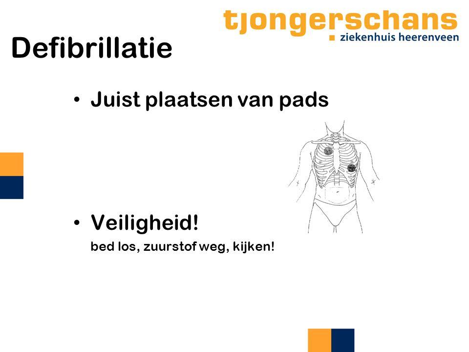 Defibrillatie Juist plaatsen van pads Veiligheid! bed los, zuurstof weg, kijken!