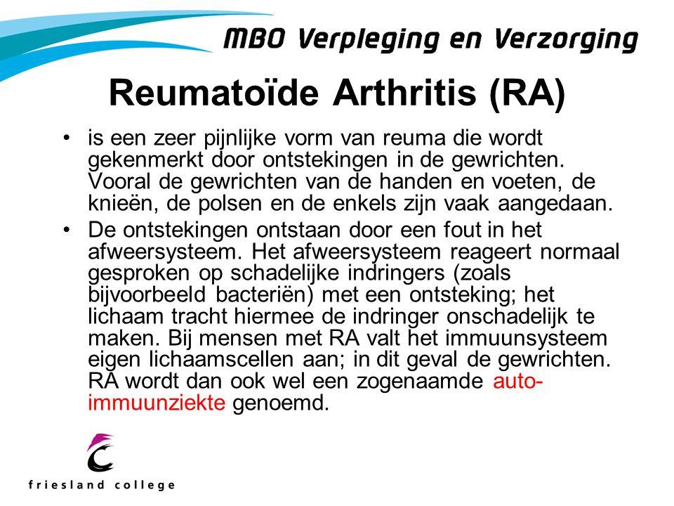 Reumatoïde Arthritis (RA) is een zeer pijnlijke vorm van reuma die wordt gekenmerkt door ontstekingen in de gewrichten. Vooral de gewrichten van de ha